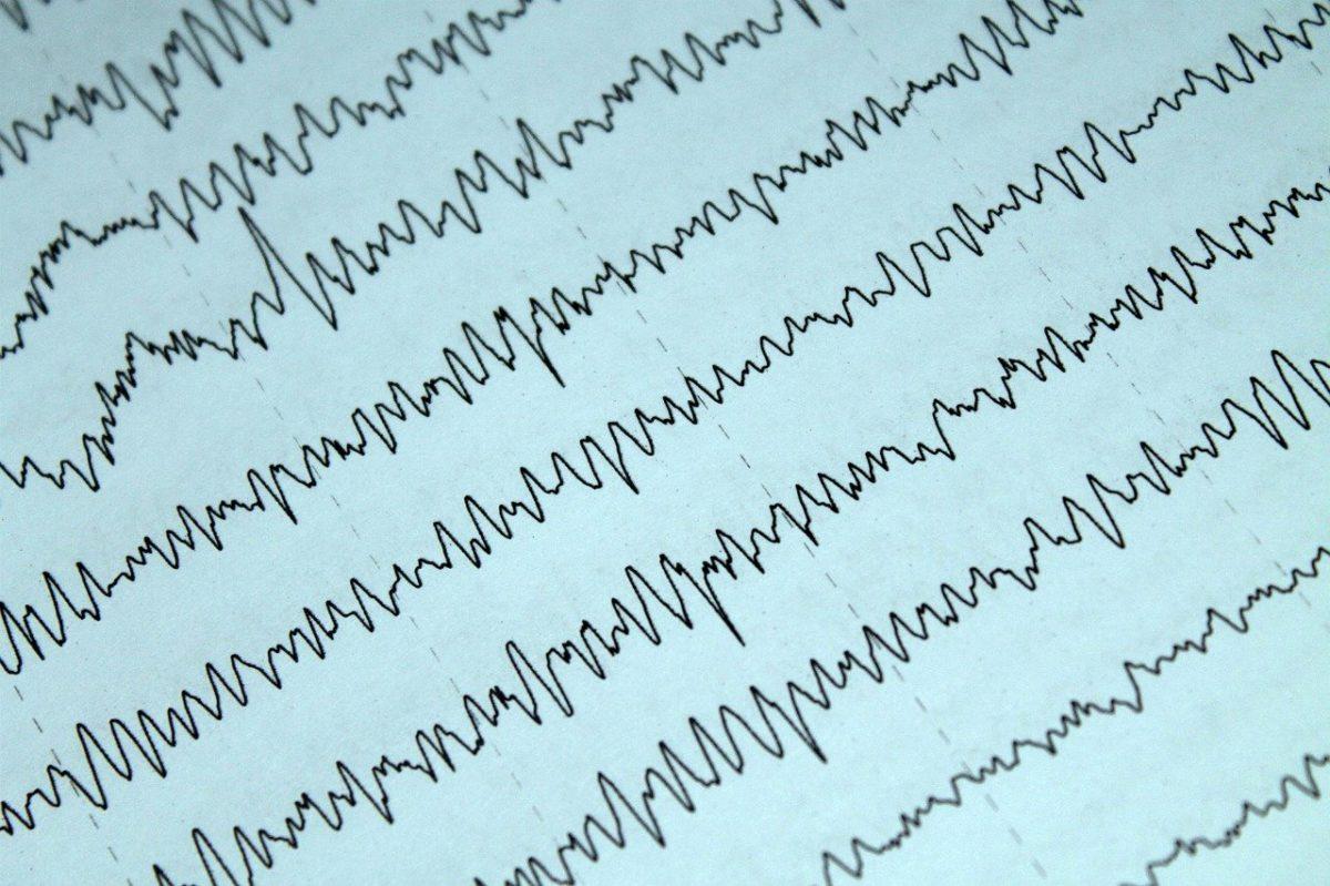 EEG, Elektroensefalografi